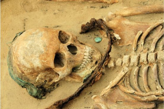 fig-8-sickle-burial